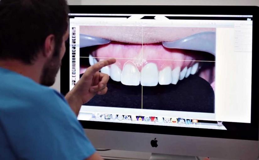 Marzysz o pięknym i białym uśmiechu, Hollywood Smile? Cyfrowe projektowanie uśmiechu jest dla Ciebie.