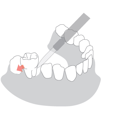 Ekstrakcja zęba w Dentim Clinic