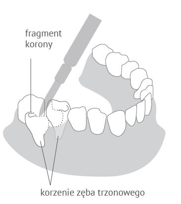 Hemisekcja zęba trzonowego w Dentim Clinic