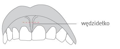 Plastyka wędzidełek warg i języka