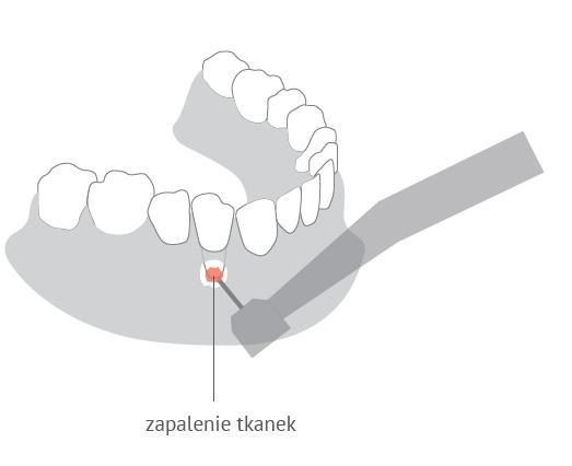 Resekcja korzenia zęba w Dentim Clinic
