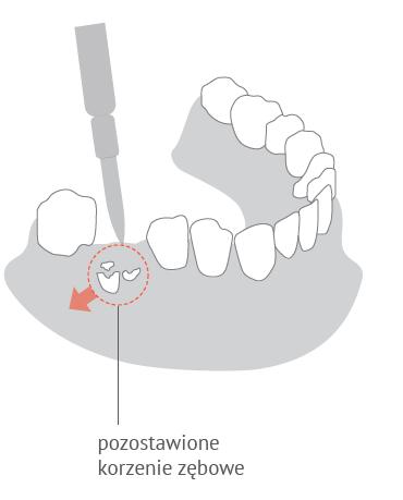 Usunięcie pozostawionych korzeni zębów