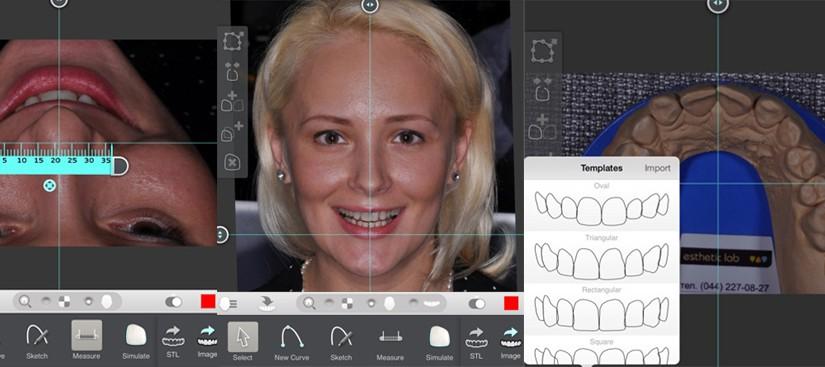 Cyfrowa wizualizacja uśmiechu