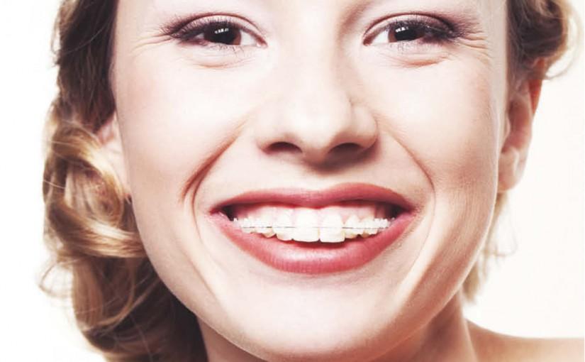7 rzeczy, które musisz wiedzieć, zanim wybierzesz ortodontę