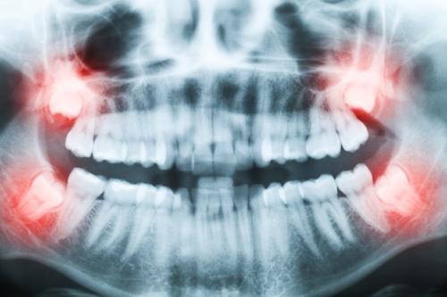 Wyrywanie ósemek. Wszystko co musisz wiedzieć o chirurgicznym usuwaniu zębów mądrości.